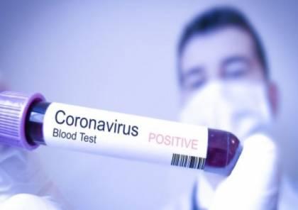 الموافقة على استخدام علاج محتمل لفيروس كورونا في إسرائيل
